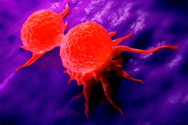Respuesta a la terapia contra el cáncer